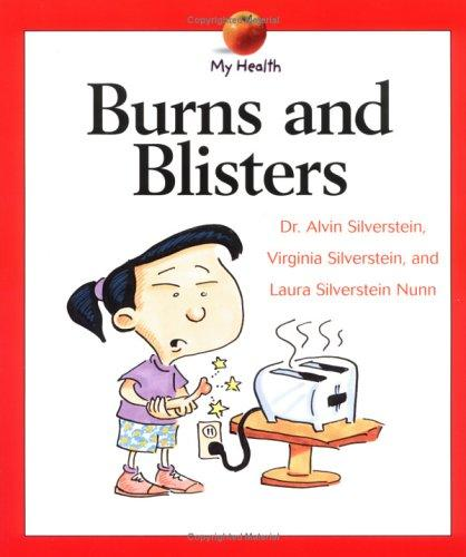 Burns and Blisters (My Health)